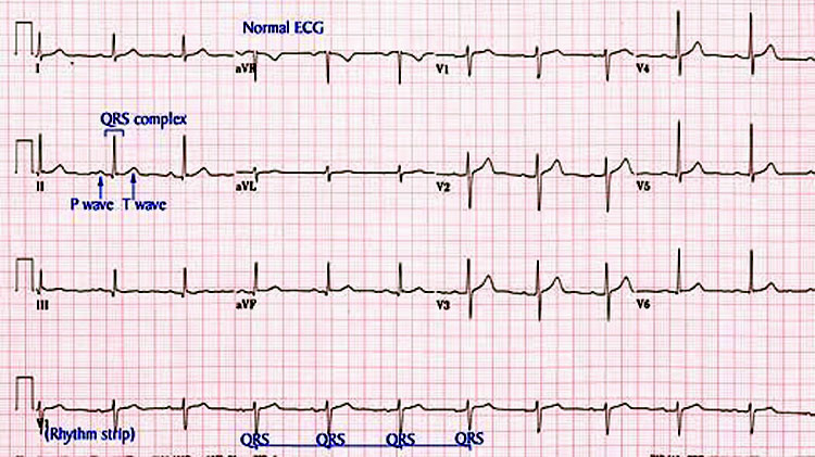 Ekg and rhythm strip